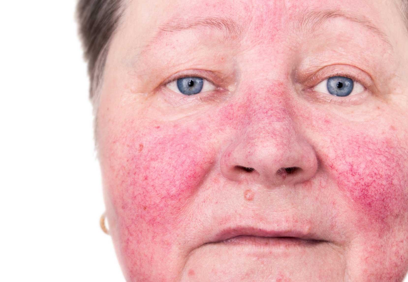 Leczenie rumienia i naczynek na twarzy